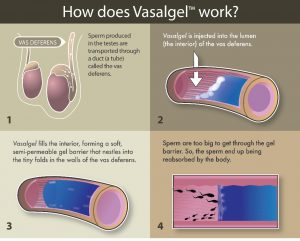 Vasalgel™ is a hydrogel polymer injected into the vas deferens. After injection vasalgel forms a barrier within the vas deferens that sperm cannot swim through. Image provided by www.parsemusfoundation.org
