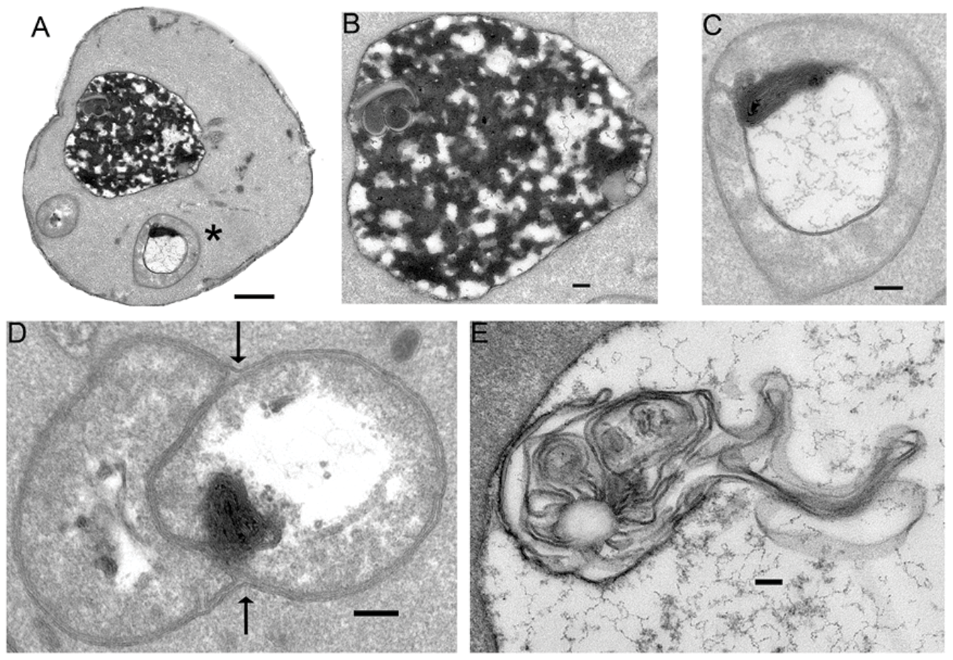 Now imagine them remixing. [Citation: Chen J, Korostyshevsky D, Lee S, Perlstein EO (2012) Accumulation of an Antidepressant in Vesiculogenic Membranes of Yeast Cells Triggers Autophagy. PLoS ONE 7(4): e34024. doi:10.1371/journal.pone.0034024]