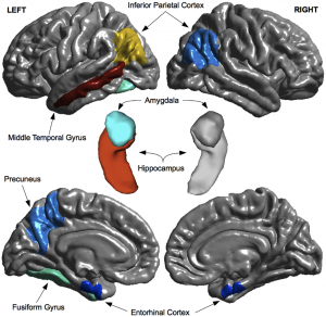 Regional MRI predictors of MCI-to-dementia progression. Figure courtesy Korolev et al. via PLOS One.