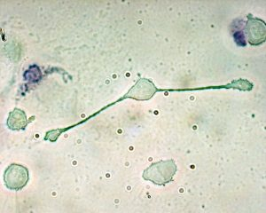 A macrophage (center) extending its cell body to the left and right to engulf two particles.